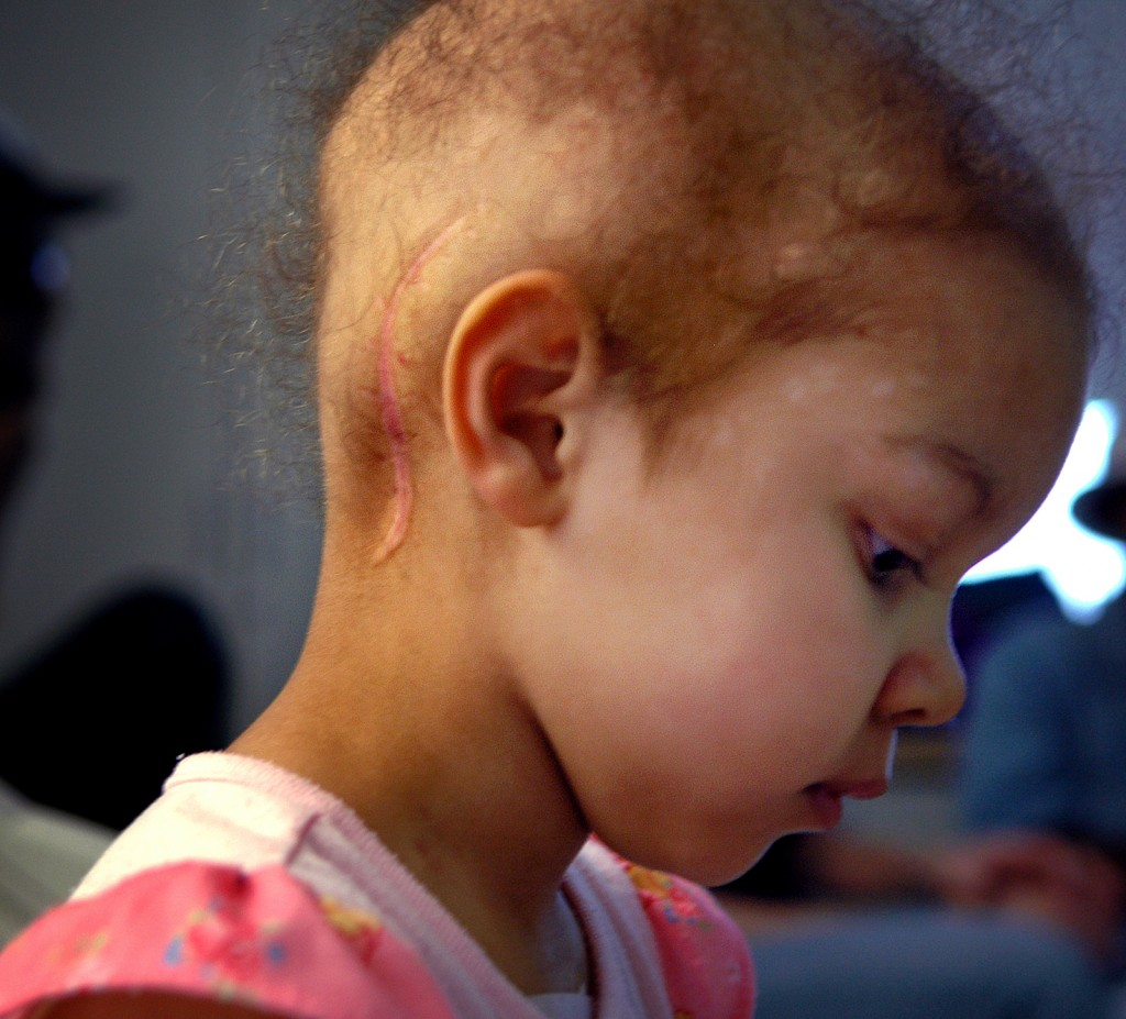 Family coping with father and daughter both stricken with rare cancers